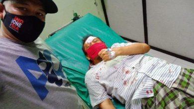 Photo of Politisi PAN Eggi Sudjana Kecelakaan di Cibinong